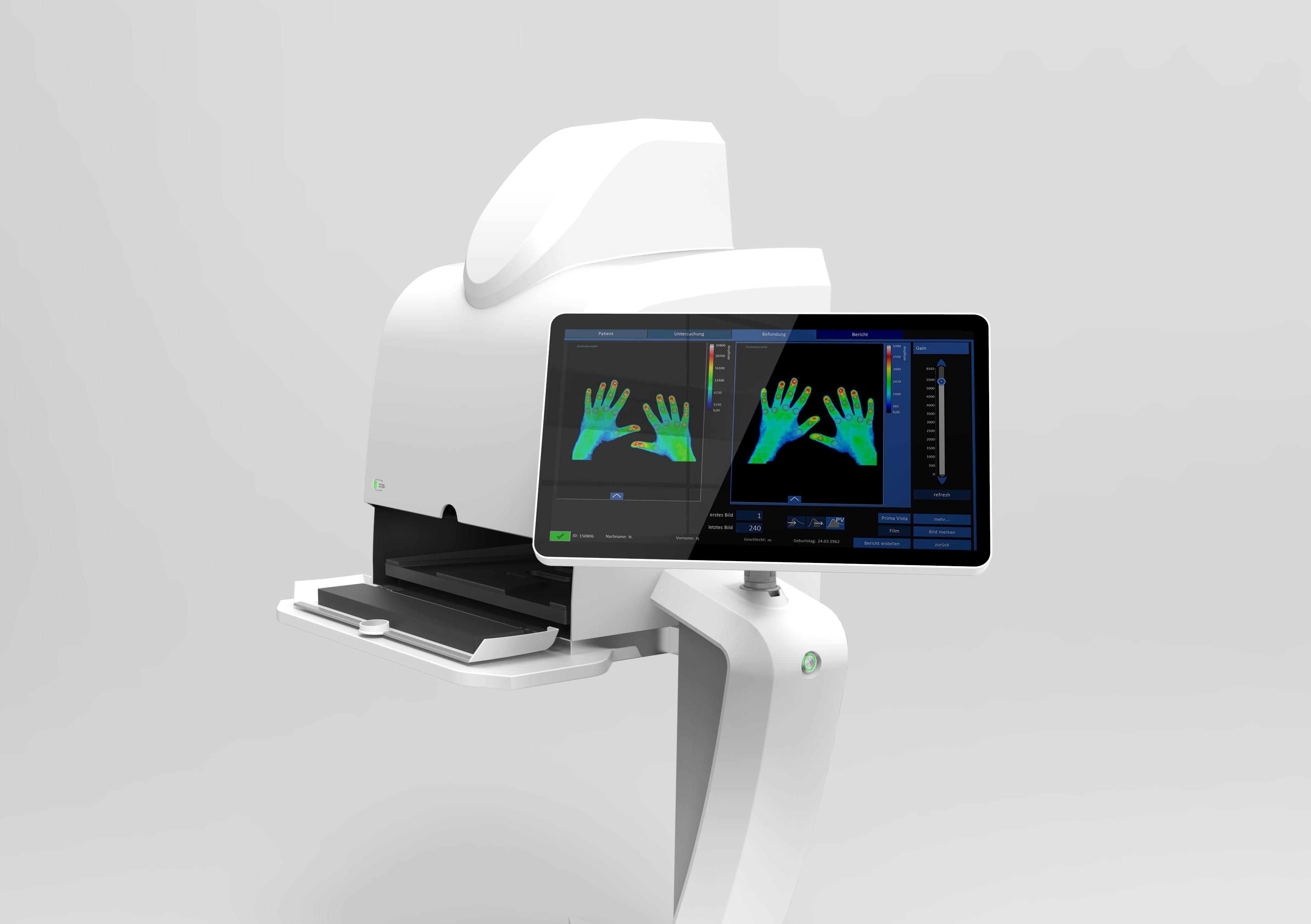 Messung gestörter Mikrozirkulation mit Xiralite X5 Touchscreen